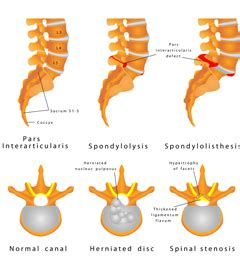 Chiropractic research papers